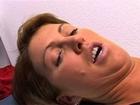 ultraschallbehandlung cellulite
